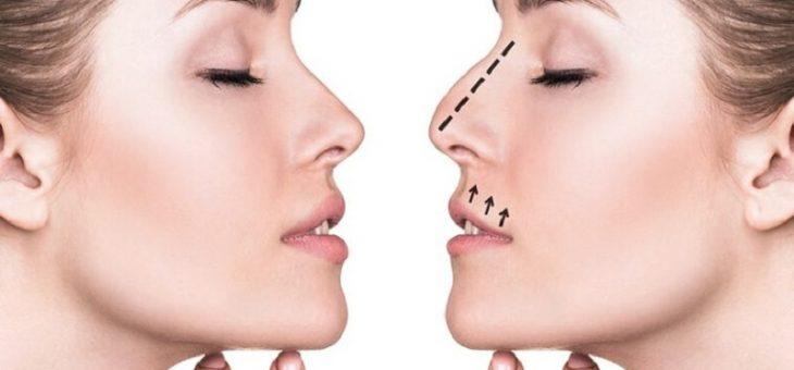 بهترین متخصص جراحی زیبایی بینی چه خصوصیاتی دارد؟