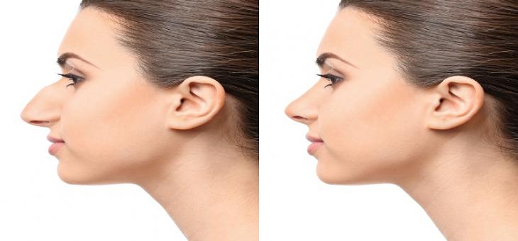 جراحی زیبایی بینی باز در ایران از زبان دکتر علی علوی راد