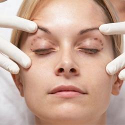 عوامل جراحی زیبایی پلک
