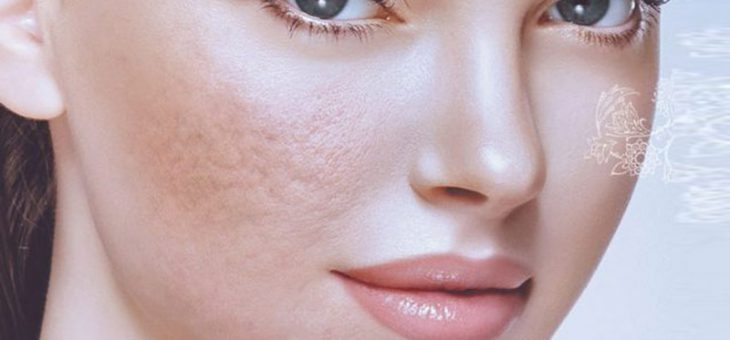 روشهای انجام سابسیژن پوست
