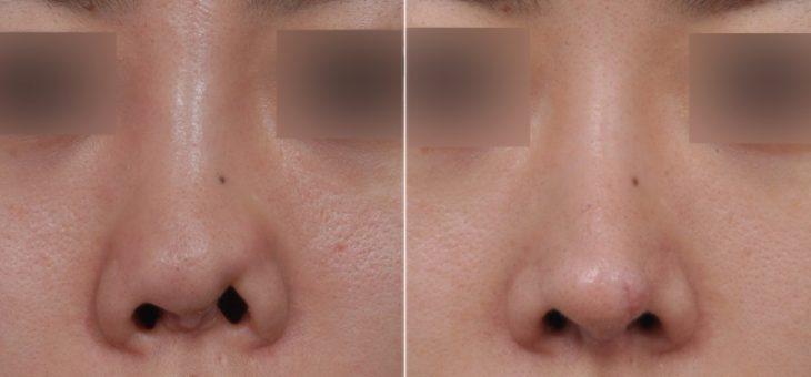 قرینه بودن بینی بعد از جراحی