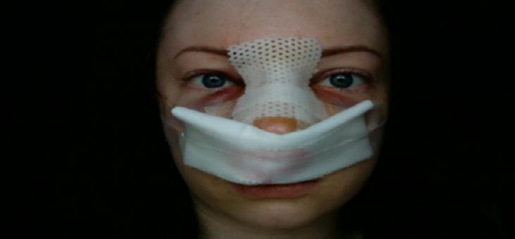 عوارض عفونت بعد از رینوپلاستی ( علایم )