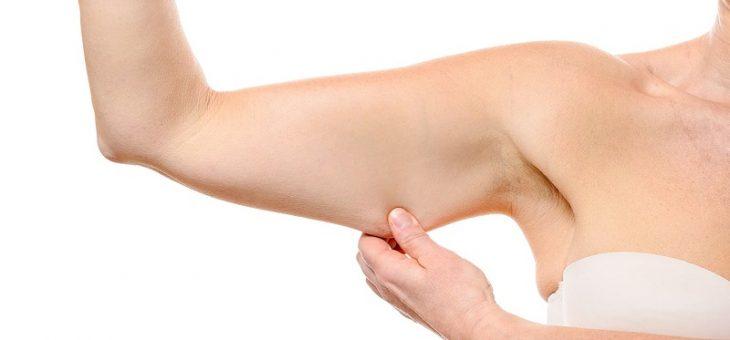 لیپوساکشن بازو یا جراحی براکیوپلاستی