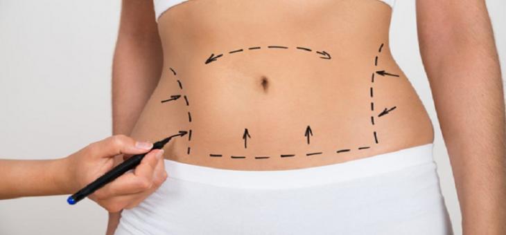 جراحی لیپوساکشن برای چه مناطقی استفاده می شود ؟