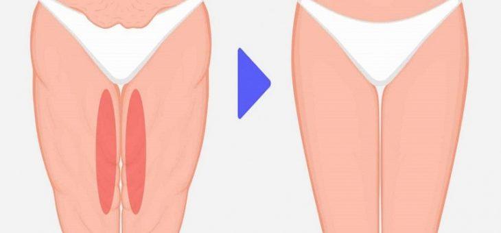 مراقبت های قبل از جراحی لیفت بدن