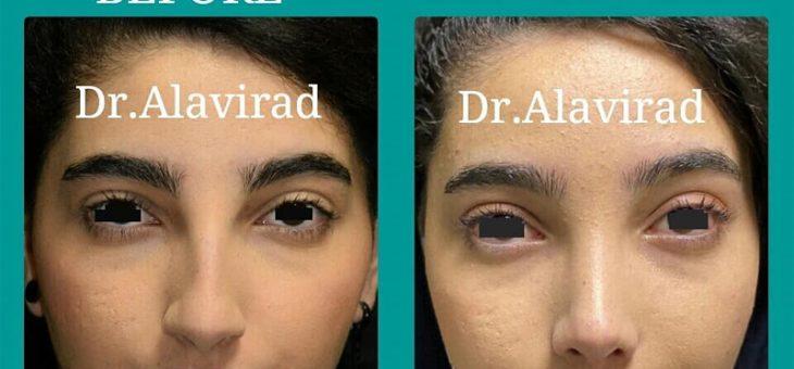 نتیجه جراحی زیبایی بینی بعداز ۴ ماه