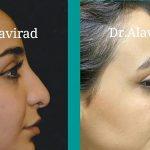 جراح پلاستیک اصفهان | نتیجه عمل بینی پس از گذشت هفت ماه