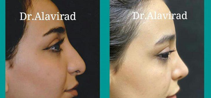 نتیجه عمل بینی پس از گذشت هفت ماه