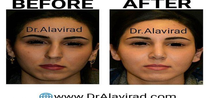 نتیجه عمل جراحی زیبایی بینی بعد از ٣ماه
