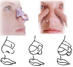 نحوه چسب زدن بینی بعد از عمل