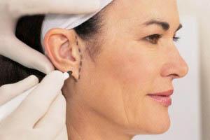 بازسازی گوش و جراحی اتوپلاستی تجدید ساختار