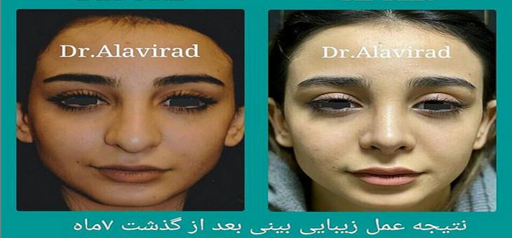 نتیجه عمل بینی بعد از ۷ ماه