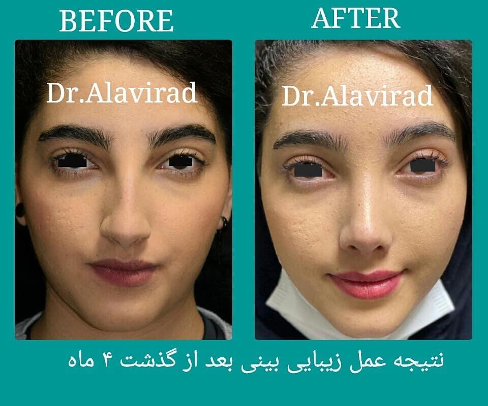 جراح پلاستیک اصفهان   نتیجه جراحی زیبایی بینی