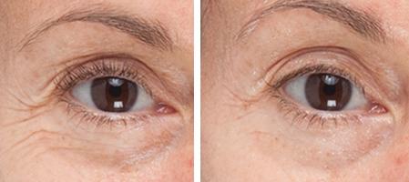 پلاسما جت ( درمان چروک های دور چشم) چیست؟