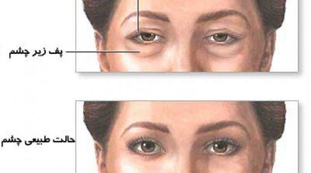 جراحی پلک تحتانی چیست؟