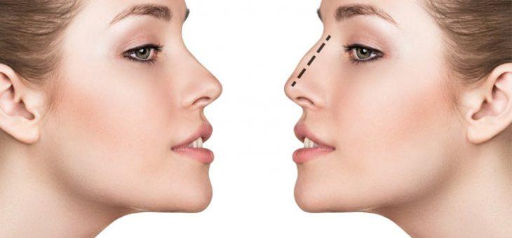 چه کسی میتواند برای بینی خود، درمان با لیزر را انجام دهد؟